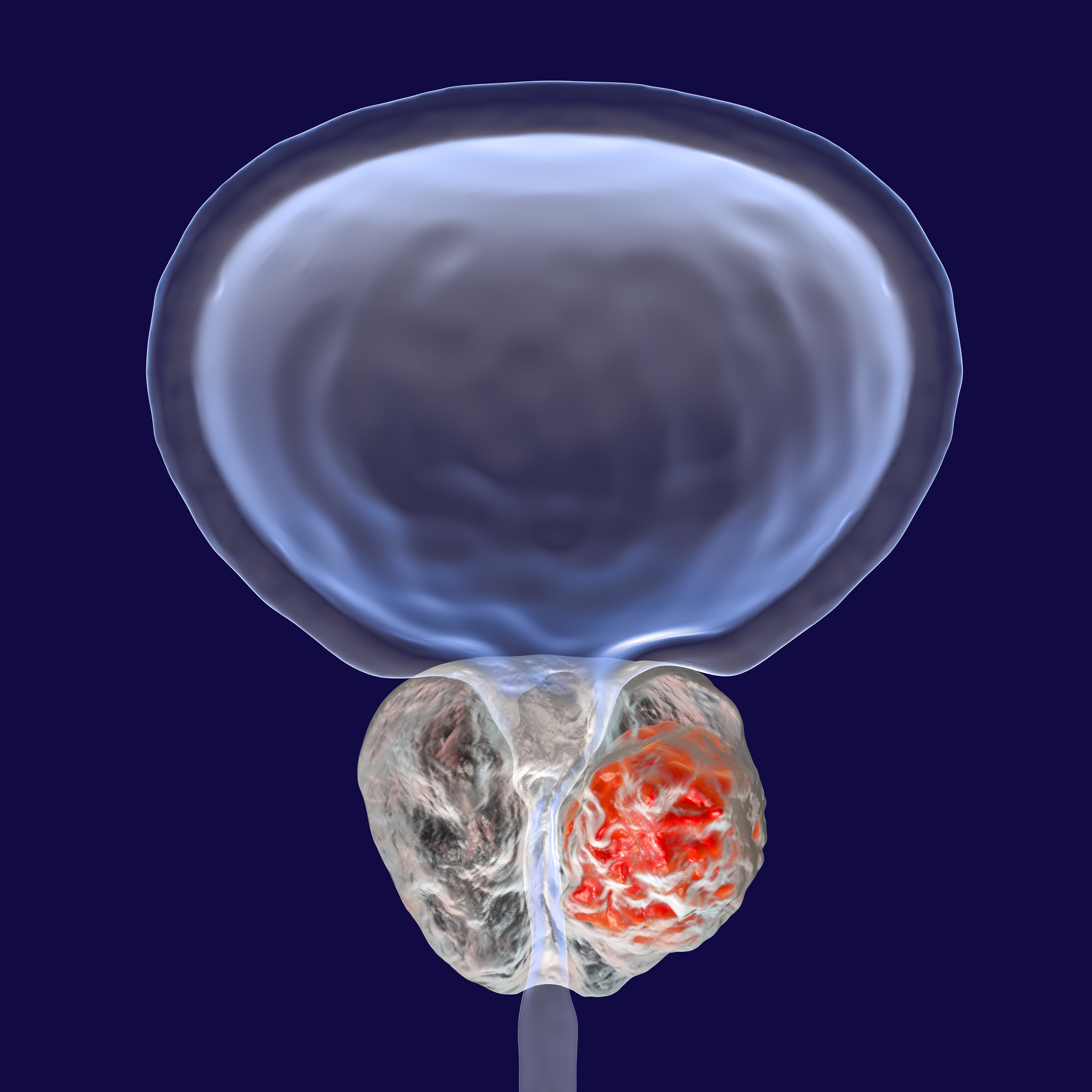 cancerul la prostata)