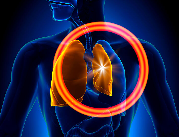 Lungenkollaps